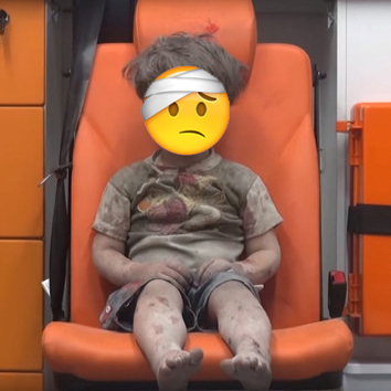 Syrian child hurt with emoji expression